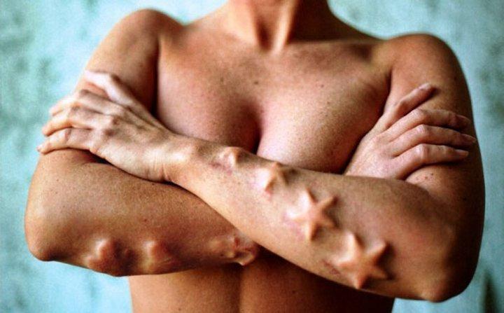 Самые невероятные модификации человеческого тела   Блог За городом